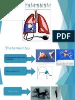 Hipertensión Pulmonarn eibar