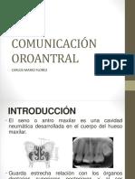 Comunicacion oroantral
