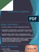 Eczematous Eruptions