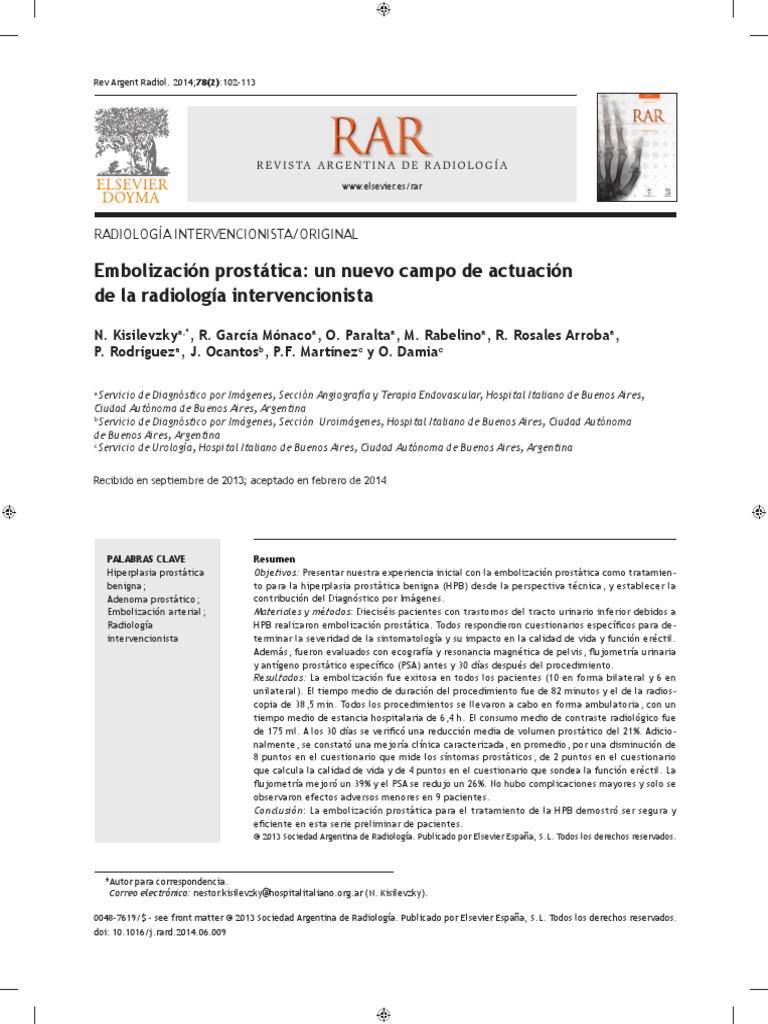embolizacion de la prostata en españa