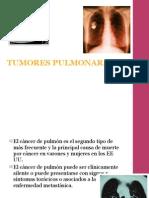 TUMORES PULMONARES