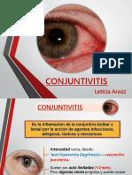 Conjuntivitis Charla ORIGNAL