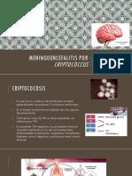 Meningoencefalitis Por Cryptococcus II