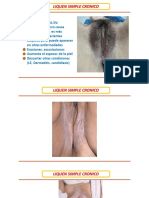 Clases distrofias vulvares