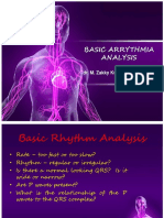 Basic Arrythmia Analysis