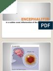 ENCEPHALITIS.pptx