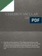 Presentas CVD