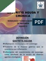 Gastritis Aguda y Crnica 160901040302