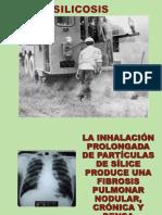 Silico Siclico TB