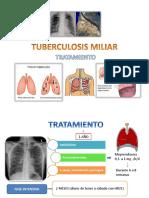 Tuberculosis Miliar Tratamiento Hp