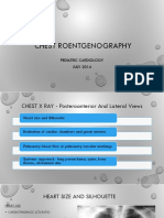 Chest Roentgenography Pediatric.ppt