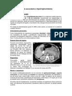 Pancreatitis Aguda Secundaria a Hipertrigliceridemia- Caso Clinico