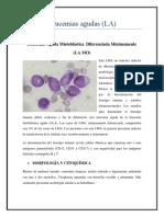 Leucemias Agudas MO M1
