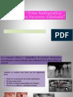 Toma Radiografica en Pacientes Edentulos
