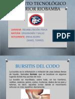Bursitis Del Codo