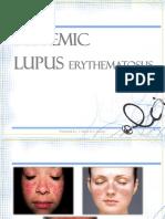 systemic-lupus-erythematosus-sle.pptx