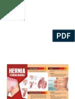 6.Edited Leaflet Hernia
