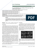 Diagnosis of Osteoporosis and Radiotherapy Induced Fracture by f18fdg Petct in a Case With Colon Cancer 2167 7964 1000212 (1)