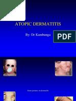 Atopic Dermatits
