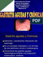2) Gastritis Agudas y Cronicas