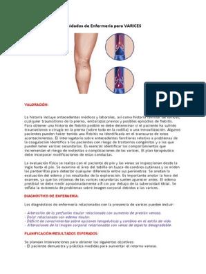 dolor de varices biodescodificacion