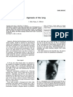 Agenesis of the Lung