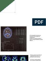 alzheimer img dx.pptx