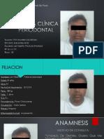 Exxamen Clinico de Periodoncia