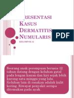 Persentasi Kasus Dermatitis Numularis