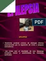 Epilepsia - Fustino
