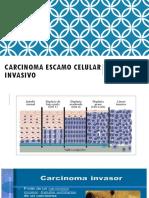 Carcinoma Escamo Celular Invasivo