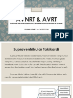 AVNRT & AVRT