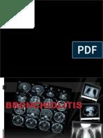 Bronchiolitis ENGLISH