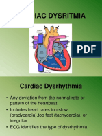 Cardiac Dysritmia