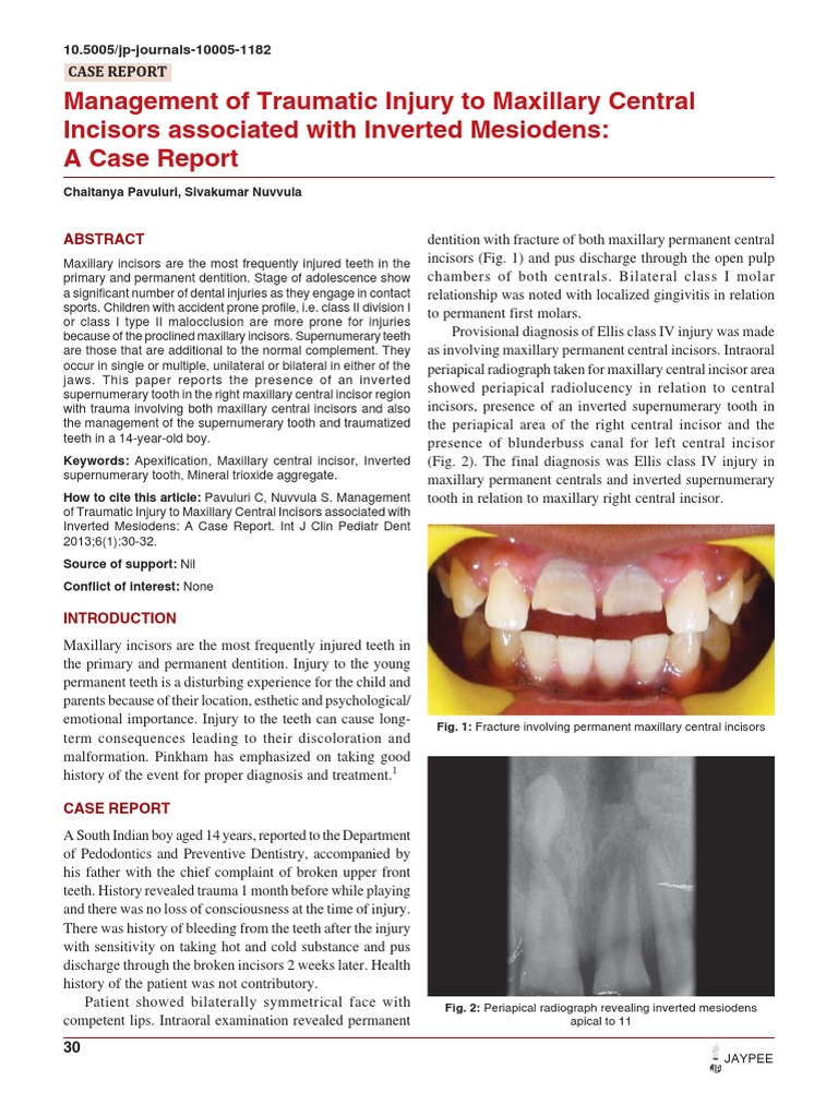 Management Incisor Maxillary Teeth   Dental Anatomy   Tooth