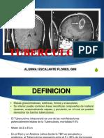 tuberculoma-160831011543