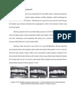 Modifikasi Preparasi Gigi Kelas IV