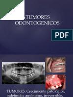TUMORES ODONTOGENICOS (1)