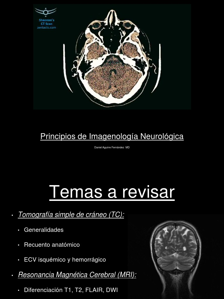 Bases De Imagenologa Neurolgica 2017 Magnetic Resonance Imaging