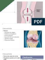 Artritis No Inflamatoria