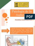 Patologia auditiva