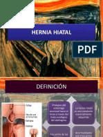hernia-hiatal.pptx