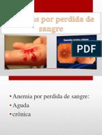 Anemia Por Perdida de Sangre