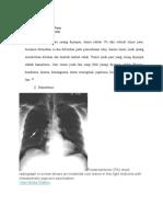 Klasifikasi Tumor Paru