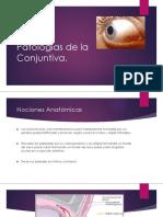 Patologías de La Conjuntiva 2