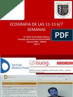 2.- ECOGRAFIA I TRIMESTRE - 11-13 SEMANAS.ppt.pptx
