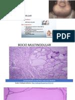 Osteosarcoma (1) (7)