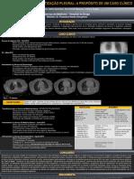 poliserosite.pdf