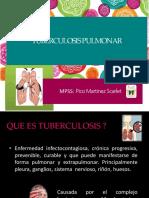 Tuberculosis Pulmonar Terminada