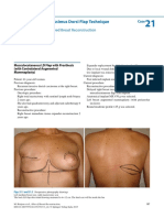Latissimus Dorsi Flap to Breast